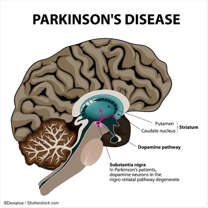 Dia Mundial contra la Malaltia de Parkinson
