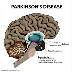 Dia Mundial contra la enfermerdad de Parkinson